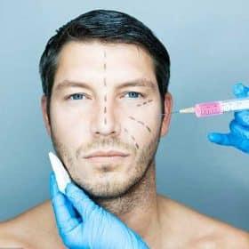 Botox για άνδρες